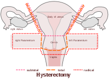 Cape Coral Hysterectomy Specialist